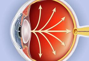 pression intraoculaire glaucome