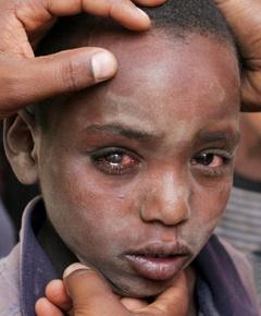 Trachome maladie des yeux