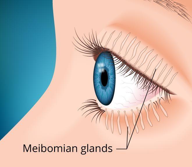 glandes de meibomius et oeil sec