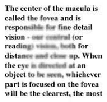 DMLA Vision centrale avec distorsion